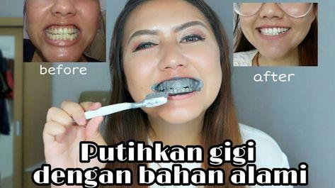 Pemutih Gigi Alami Yang Cepat Serta Permanent Tanpa Efek Samping