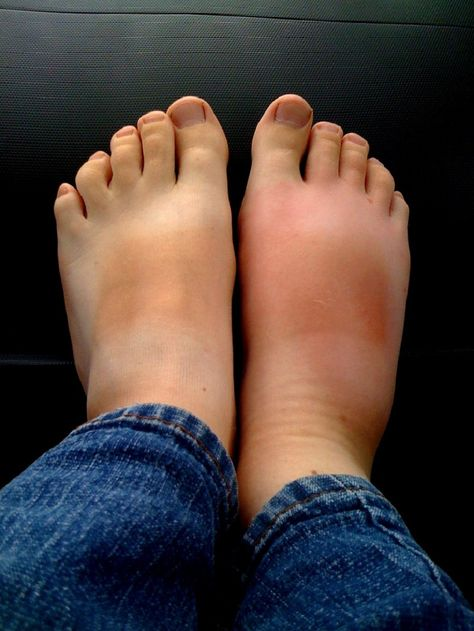 Средства против отеков ног, проверенные не одним поколением! Опухшие ноги — больше, чем простая неприятность. Это болезненное, утомительное состояние, и не всегда его можно победить пассивным отдыхом…
