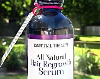 Blk male balding pattern regrowth and thinning hair solution   Etsy