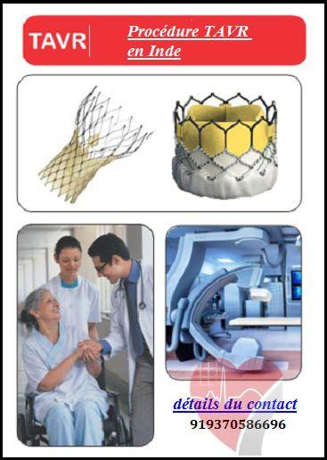 L Inde Permet A De Tels Patients De Faire Ces Procedures Facilement Et Aussi Avec Des Economies De Couts Suffisantes Surgery Cardiac Aortic Valve Replacement