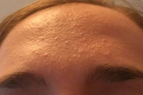 Forehead Bumps Be Gone Forehead Bumps Skin Bumps On Face Small Bumps On Forehead