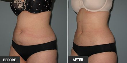 Weight loss after liposuction procedure