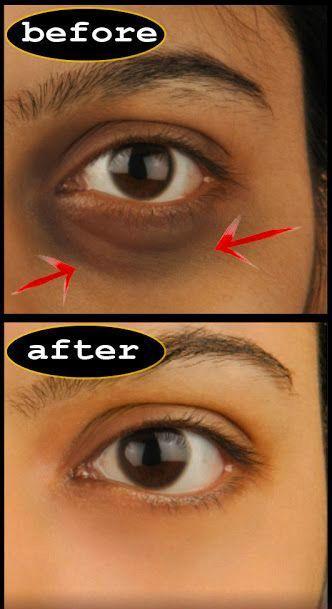 dark circles under eyes treatment