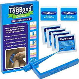 Deluxe Micro Tagband Skin Tag Remover Kit With Extra Bands And