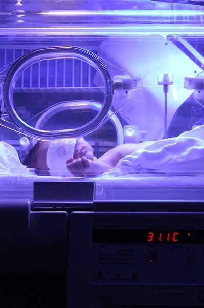 Jaundice - Everything I Won't Miss About Having a Baby - Photos