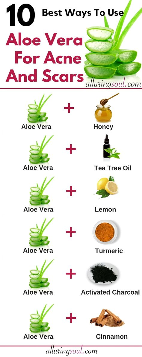 Aloe Vera For Acne - 10 Ways To Treat Acne And Scars