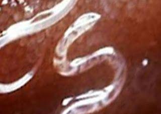 طبيبكم كيف تقتل الديدان في بطنك وتطردها Blog Posts Blog Post