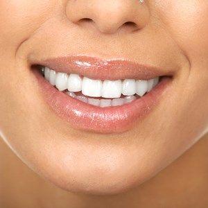 طريقة الدكتور أوز لتبييض الأسنان Beauty