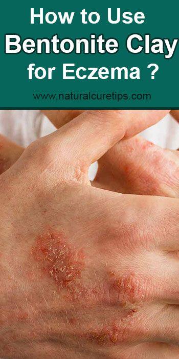 Pin On Eczema Remedies Treatments