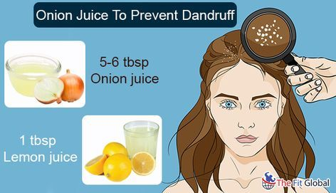 8 Benefits Of Onion Juice For Hair Regrowth Dandruff Split Ends