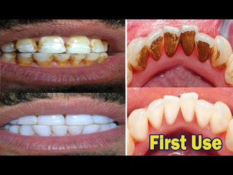 In Just 2 Minutes Turn Yellow Teeth To Pearl White With This