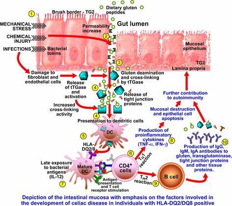 Gluten hipotiroidismo autoinmune definicion