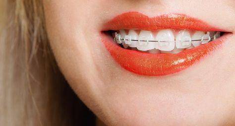 blanchiment des dents avec appareil dentaire