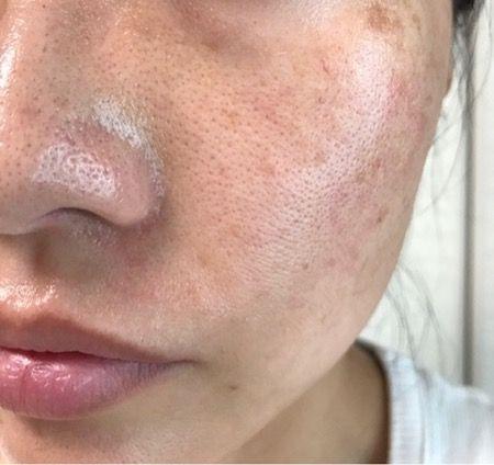 ロキソニンsを作った大手製薬会社の薬用コスメが凄すぎ 46歳の美魔女 皮膚科医も注目したエイジングケア習慣がすごい Health Topics 肝斑 毛穴 スキンケア