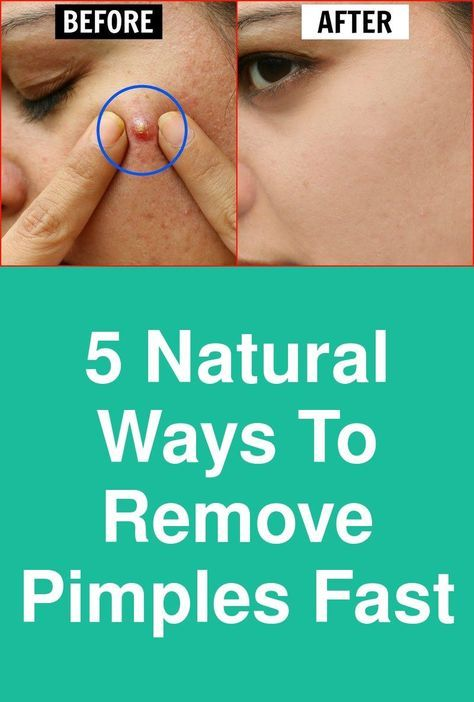 b3b7506c7b57515a1ddfe727d88225cc - How To Get Rid Of Pimples Fast In One Day