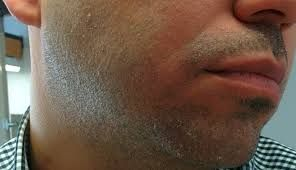How To Defeat Of Your Dry Skin Under Beard Once And For All Beard Skin Beard Care