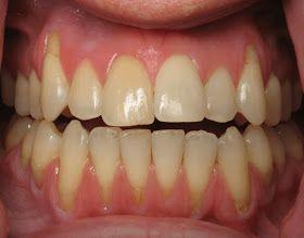 أسباب انحسار اللثة والوقاية من تآكلها وطرق العلاج Receding Gums Gum Disease Treatment Gum Disease
