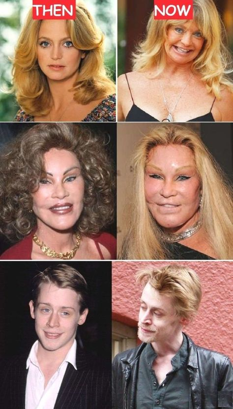 23 Terribly Aging Celebrities Then And Now Photos, Goldie Hawn Then And Now, Jocelyn Wildenstein Then And Now, Macaulay Culkin Then And Now. vorher nachher 23 Terribly Aging Celebrities Then And Now Photos