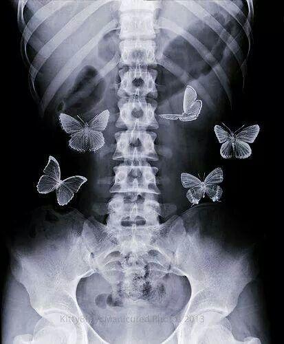 X-Ray Anticipatory Conceptual Butterflies Poster | Zazzle.com