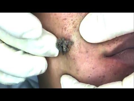 Great Blackheads Remover on Face (Full Screen) - YouTube