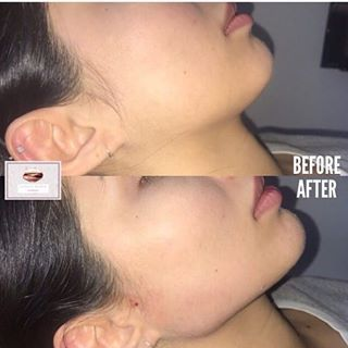 Kylie Package The 4ml Was Used On Jawline A