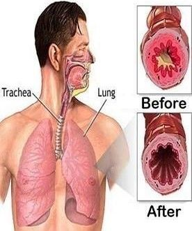 How To Get All The Mucus Out Of Your Lungs