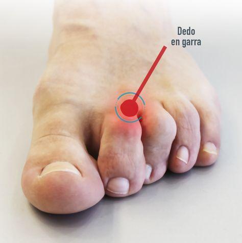 Dedos en garra. Qué son, causas y tratamientos | Blog Podoactiva