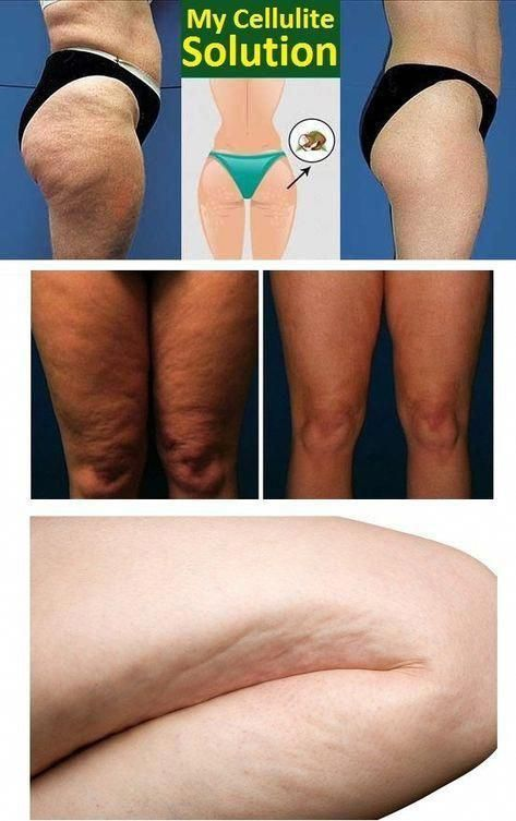 Pin On Non Surgical Cellulite Removal