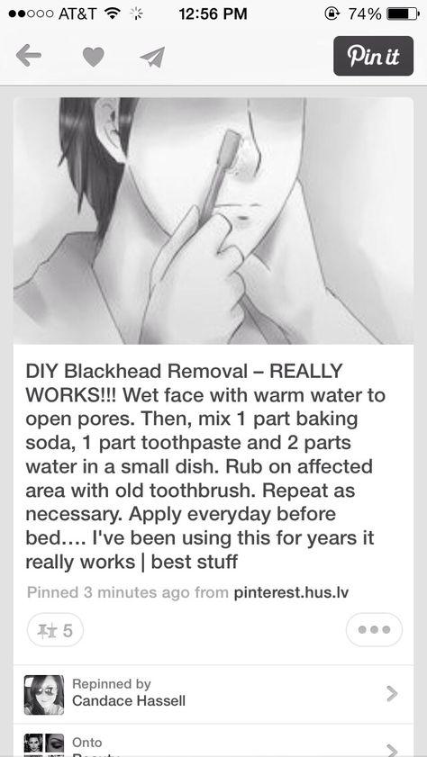 BEST WAY TO GET RID OF BLACKHEADS!!!!