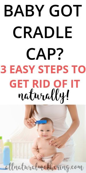 Natural Cradle Cap Remedies That Work Like A Charm Cradle Cap Remedies Baby Cradle Cap Cradle Cap Remedies Baby