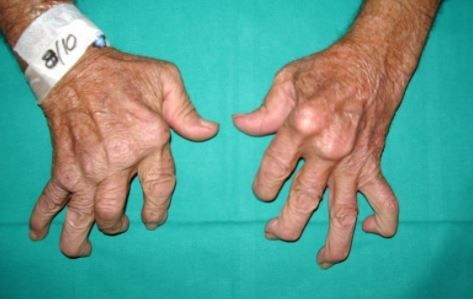 arthrite rhumatoide symptomes