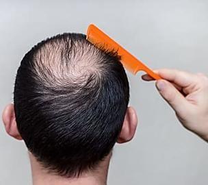 Christmas Star Ornament Hair Loss Restoration Hair Loss Hair Transplant