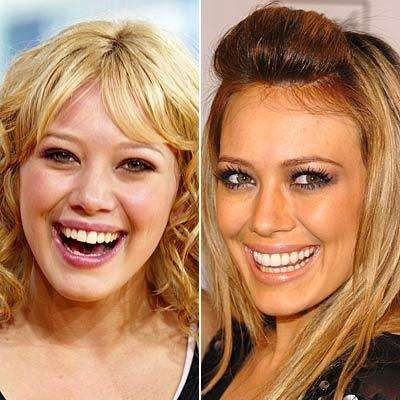 Celebrity Nose Jobs: Before and After