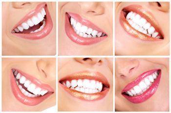 Milchige Zahnarzt Geschenke Teethwhiteningkits Wisdomteethcartoon Zahnarzt Zahne Bleichen Zahnimplantat Kosten
