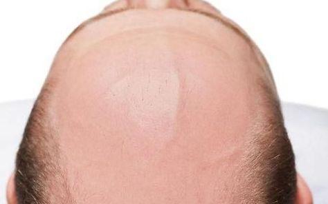 FINALMENTE IL FARMACO PER I CALVI. ECCO IL RIMEDIO... Negli Stati Uniti, per la precisione a San Diego, è stato scoperto un farmaco miracoloso in grado di far ricrescere i capelli. Al momento si chiama SMO4554 ed è stato prodotto all'interno della start #capelli #pelati #farmaco