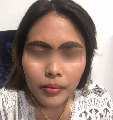 How Long Does Tattoo Removal Take Beautiful Bad Bad Brows What to Do when Eyebrow Tattoos Go Green