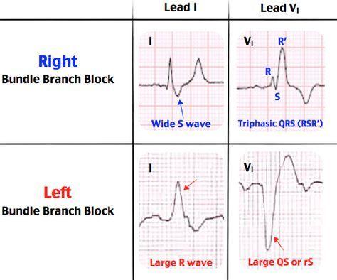 Right Bundle Branch Block Vs Left Bundle Branch Block Rosh Review Cardiac Nursing Emergency Nursing Cardiology Nursing