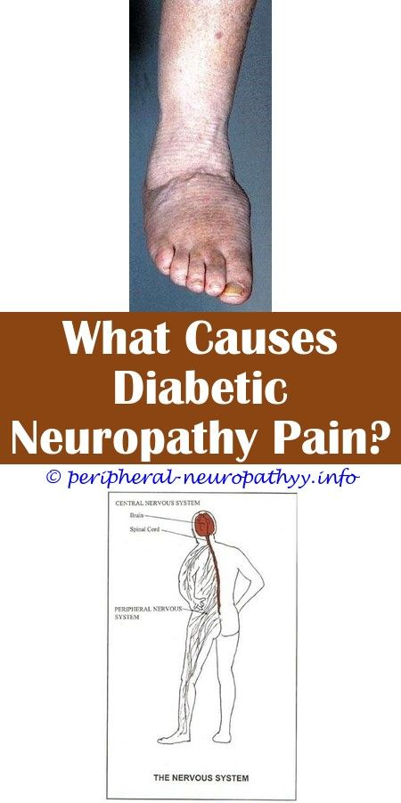 What Helps Neuropathy Foot Pain | Peripheral Neuropathy