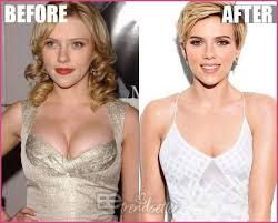 Scarlett Johansson Plastic surgery: Breast Reduction Before & After - Hair Loss