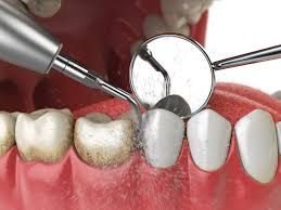 Delta Dental Ppo Dentists Near Me Ppo Dentists Houston Urbn Dental Dental Cleaning Dentistry Teeth Cleaning