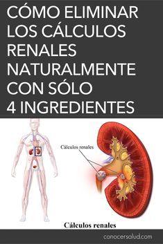 Como eliminar calculos renales naturalmente