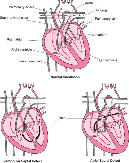 Atrial and Ventricular Septal Defects - Children's Health Issues - Merck Manuals Consumer Version