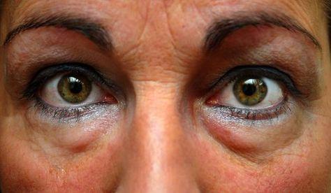 Schwellungen unter den Augen, die oft fälschlicherweise als