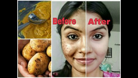 Remove dark spots in just 7 days
