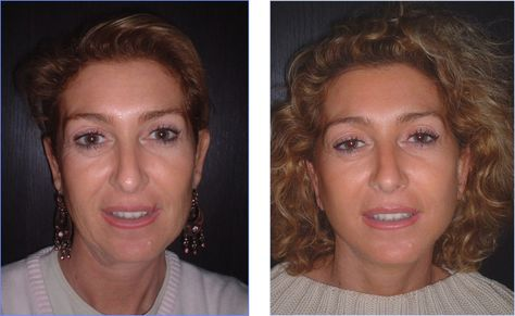 This Patient is 45 years old and wanted a soft Full Face Make Over - Segmüller Friedberg Küchen