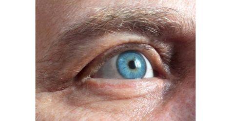 az egyik szem látást veszít, miért pfluger táblák látásélesség