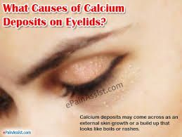 What Causes Calcium Deposits on Eyelids & Ways to Remove it
