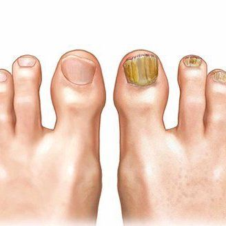 cum să vindeci rapid picioarele în vopsire