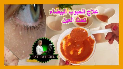 علاج الحبوب البيضاء تحث العين والتخلص منها بسهولة ميليا العين المزعجزة Food Desserts Pudding