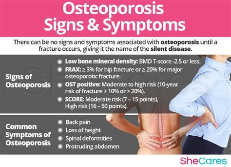 28+ Can osteoporosis cause leg pain ideas